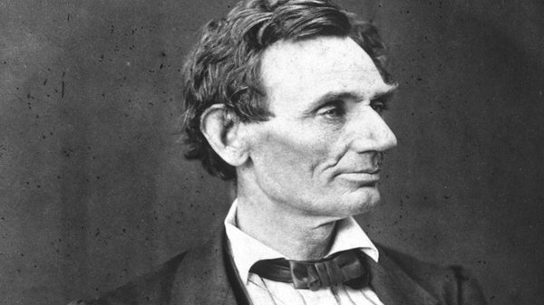 Abraham Lincoln Acromegaly